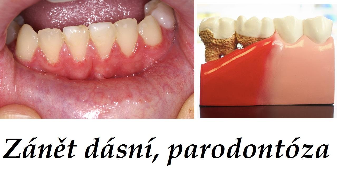 Zánět zubu domácí léčba