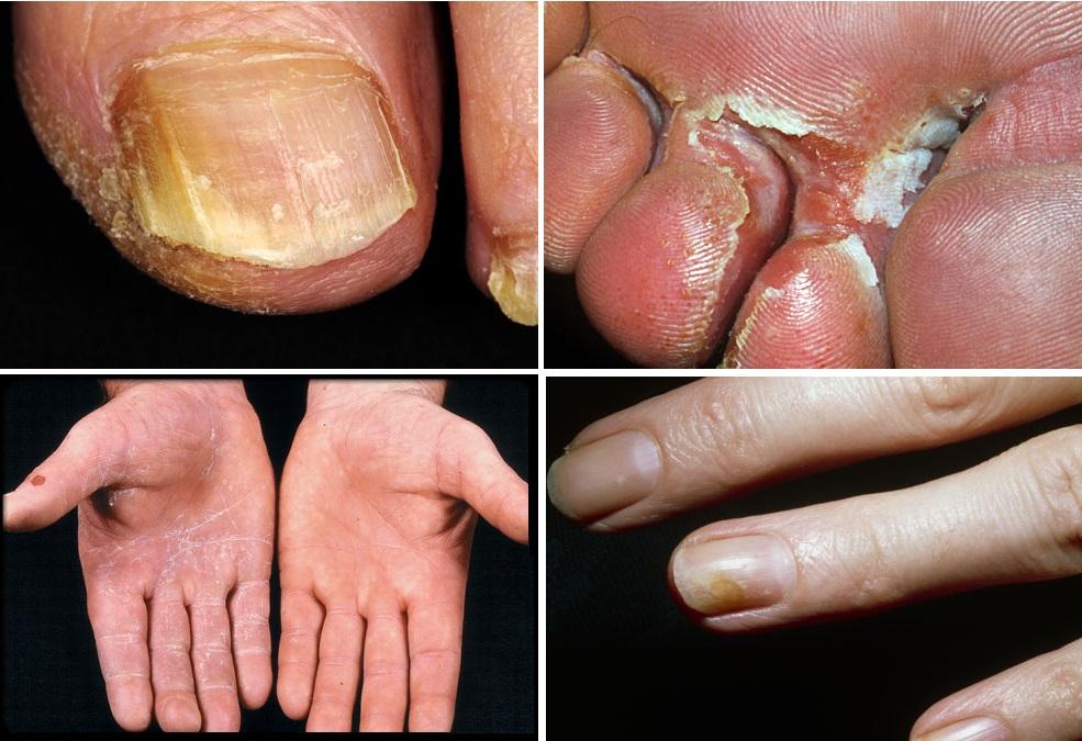 Plíseň na nohou mezi prsty