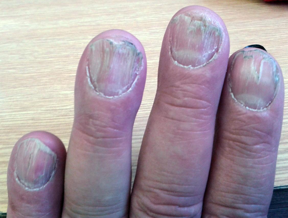 1430253241_ryhy-ryhovani-nehtu-palickovite-prsty-byliny-bylinky-babske-rady.jpg